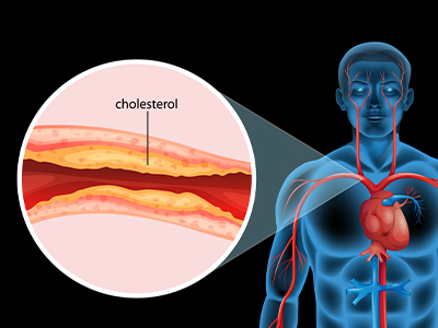 Reducing cholesterol and blood pressure